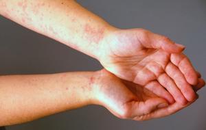 Может ли быть аллергия на творог и в чем причины