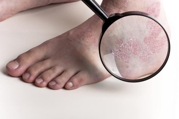 При беременности аллергия на ногах