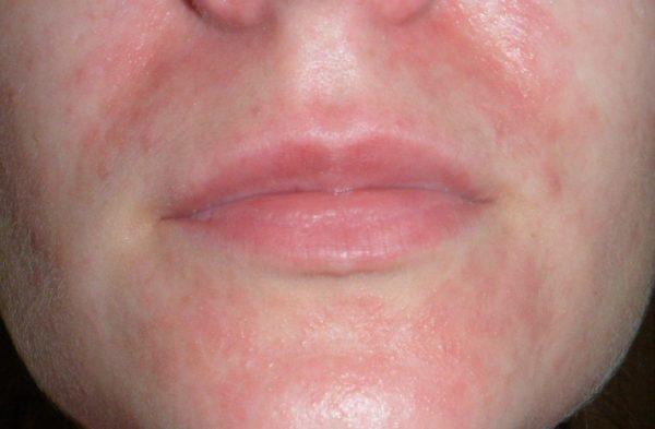 как лечить алергию на амброзию при беремености