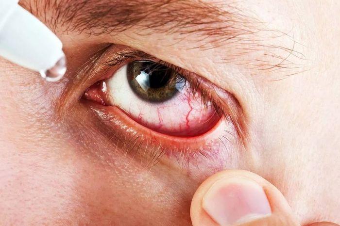 Аллергия на косметику на лице 6