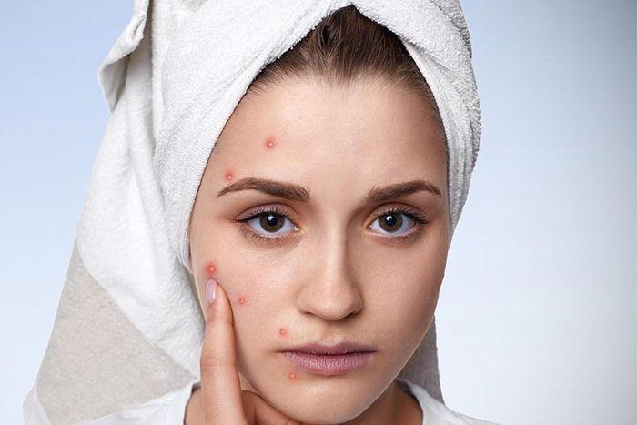 Аллергия на косметику на лице 5