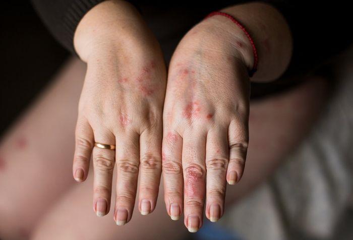 Аллергия на серебро 8
