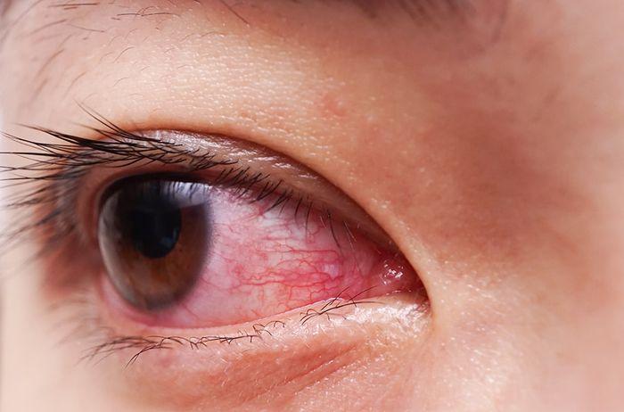 Аллергия на нарощенные ресницы 4